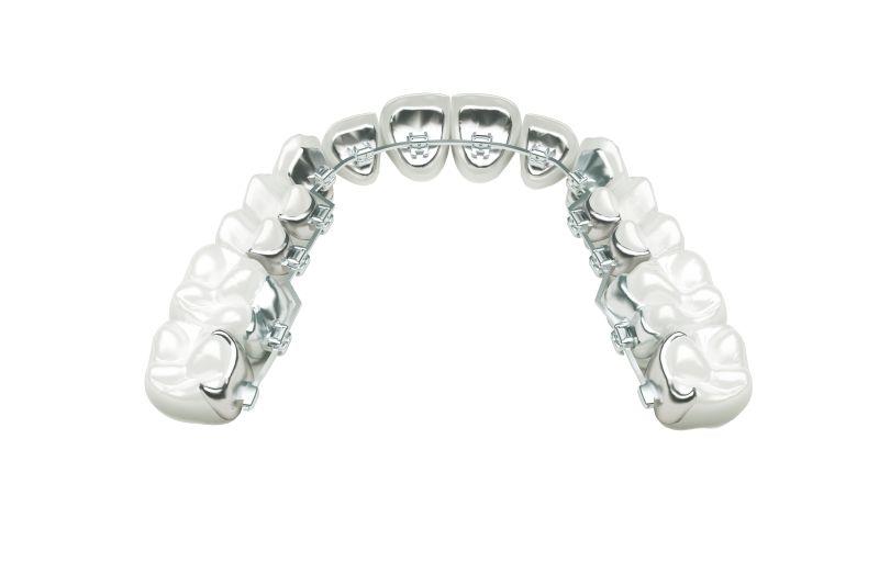 Fim das Moldagens na Ortodontia Lingual